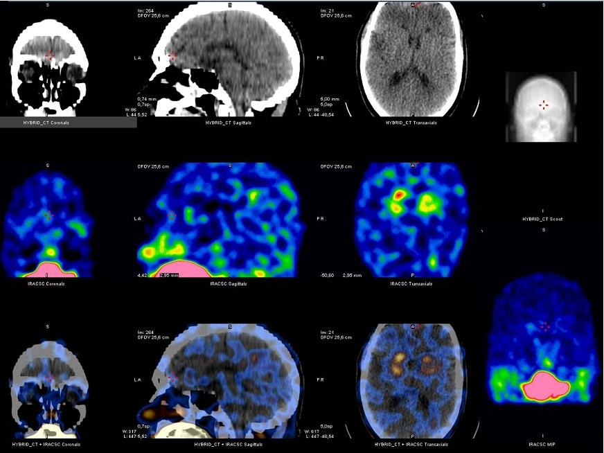 SPECT Cerebral con TRODAT: avance en diagnóstico precoz del Parkinson