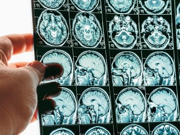 Tumores Cerebrales | Grupo Gamma