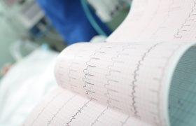 Ateneo Cardiología | Cómo sospechar con ECG y/o Holter que un paciente pueda tener FA