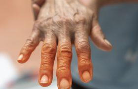 Día mundial del Parkinson | Grupo Gamma