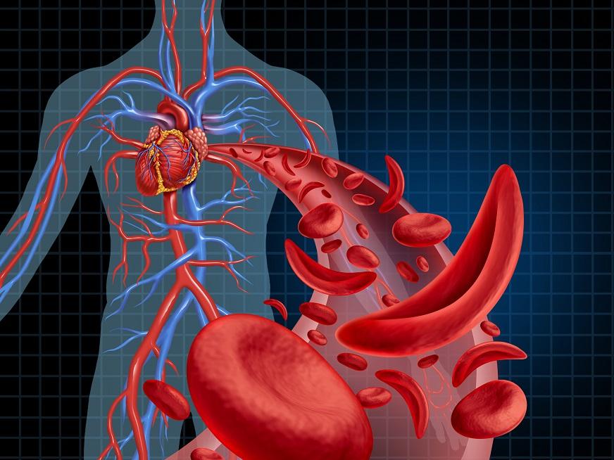 Ateneo Cardiología | TEP Intermedio / Alto Riesgo