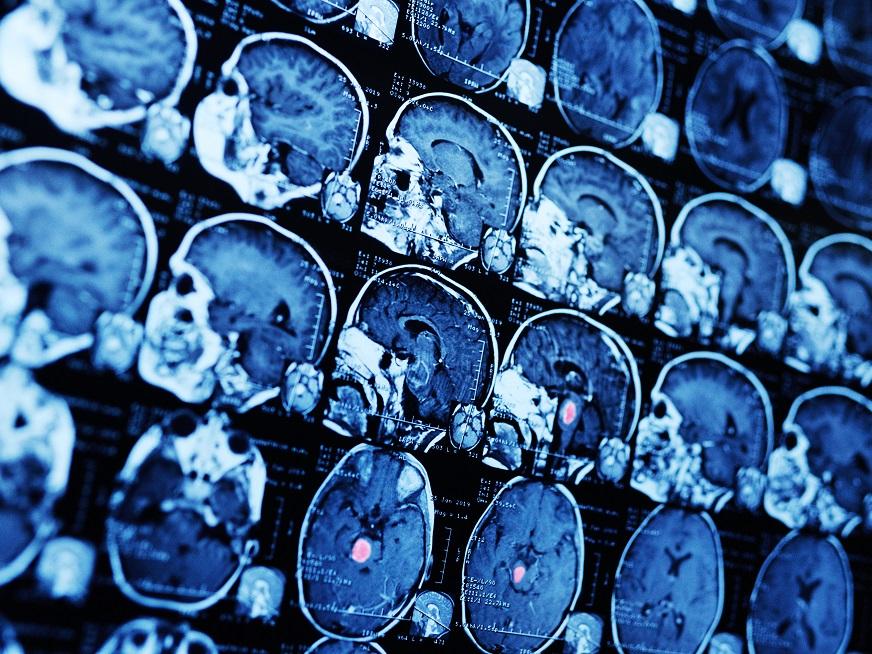 Tratamientos de los tumores cerebrales: una mirada holística