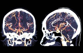Presentación de la Unidad de Aneurismas y Malformaciones Neurovasculares   Grupo Gamma