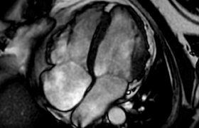 Perfusión y Viabilidad Miocardica | Grupo Gamma