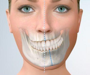 Cirugía Ortognática | Grupo Gamma