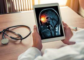 Inteligencia Artificial en Neuroimágenes | Grupo Gamma