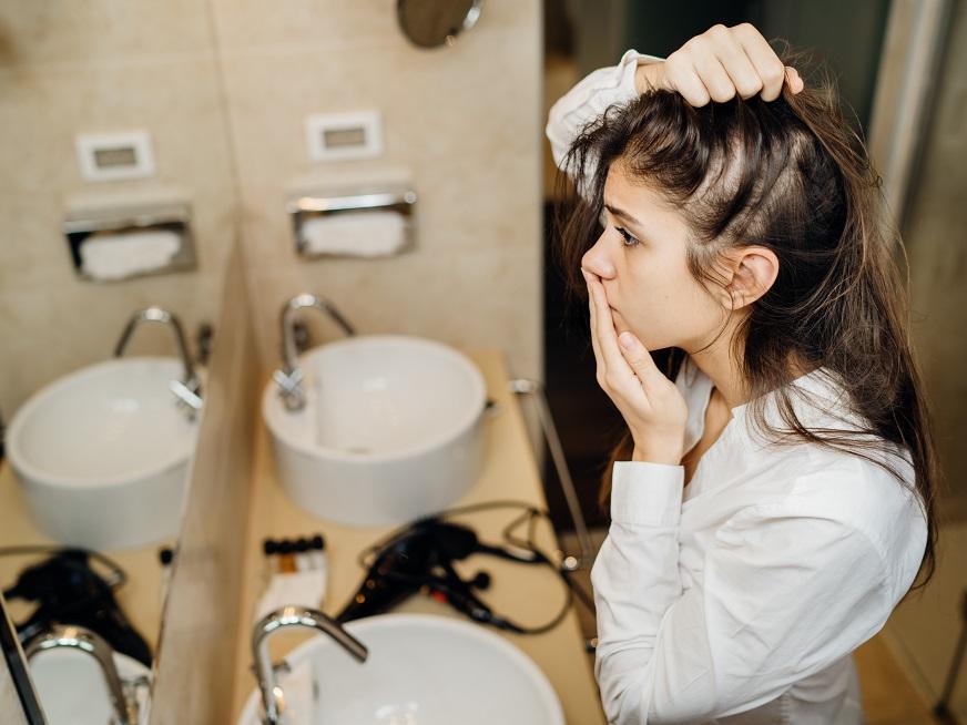 Alopecia en pandemia