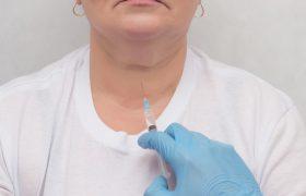 Punción con aguja fina de nódulos tiroideos | Grupo Gamma
