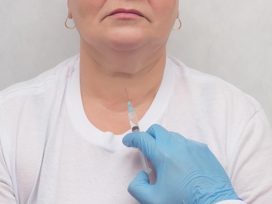Punción con aguja fina de nódulos tiroideos